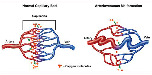 Herbal Remedies For Arteriovenous Malformation Avm