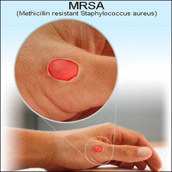 Ayurvedic Treatment of Methicillin-Resistant Staphylococcus Aureus