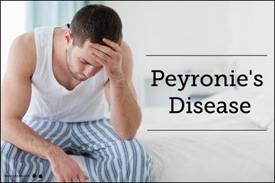 Herbal Remedies for Peyronie's Disease, Ayurvedic Treatment - Causes,  Symptoms